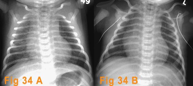 Transient Tachypnea Of Newborn Ttn Radiologi Id